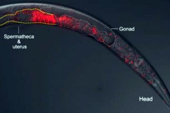 Сфинктер сперматозоида