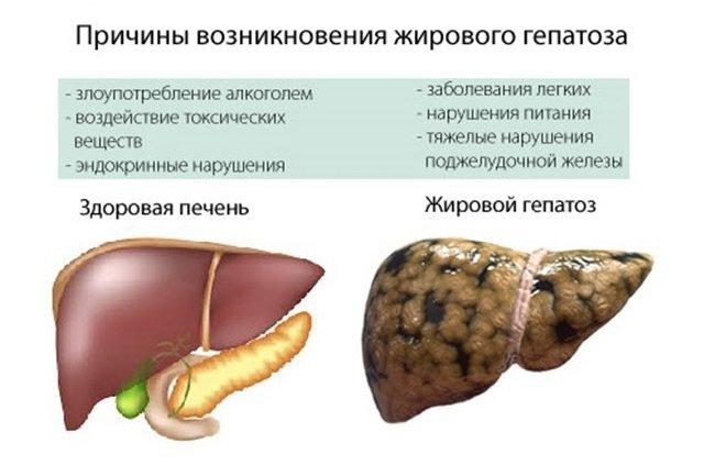 Жировой гепатоз печени диета лечение