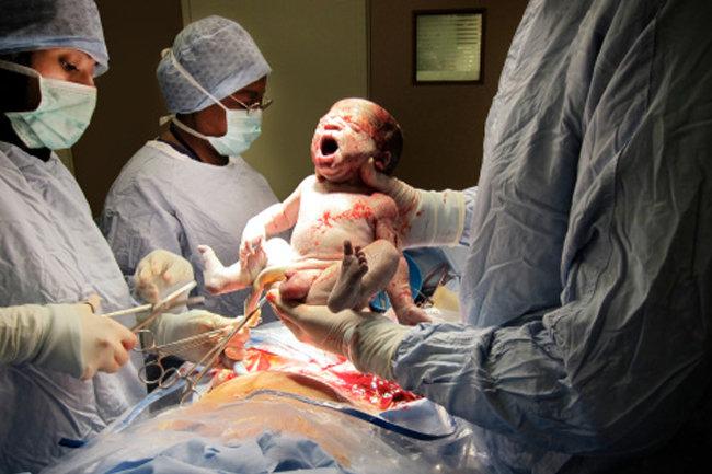 Панические атаки при беременности: причины