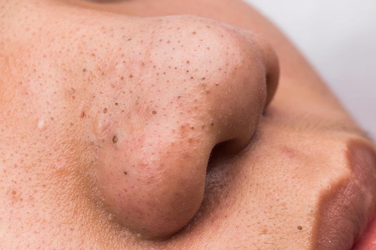 Как избавиться от черных точек на носу в домашних условиях