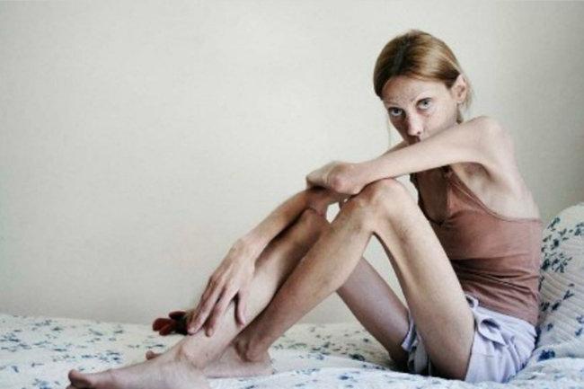Анорексия у подростков: как распознать заболевание на ранних сроках