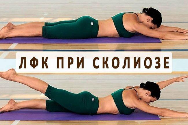 Упражнения при сколиозе - Правила, Упражнения и Профилактика