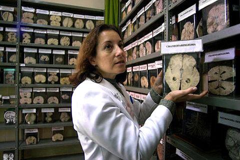 Как меняется мозг при шизофрении