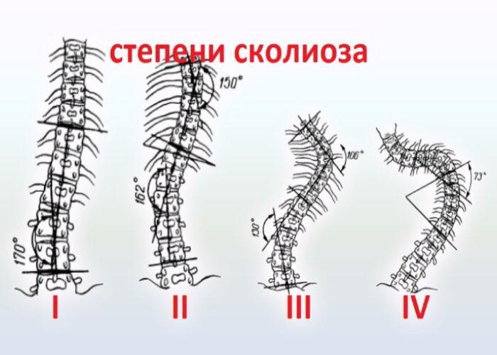 Степени сколиоза позвоночника